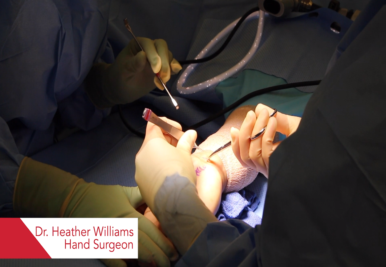 Dr. Williams discusses carpal tunnel surgery