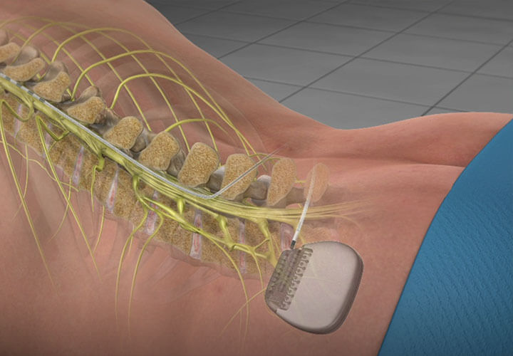 Spinal Cord Stimulator Implant