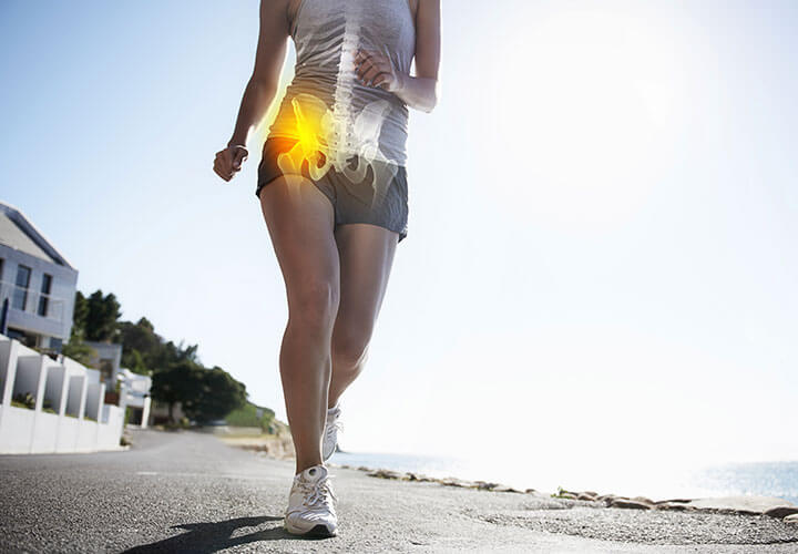 What you need to know about total joint replacement as a treatment for knee or hip arthritis