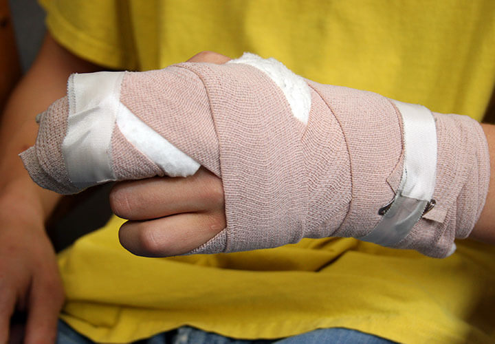 Hand Injuries in Sports